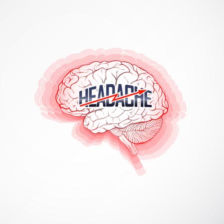 Hoofdpijn concept beeltenis van ontstoken hersenziekte. vector illustratie