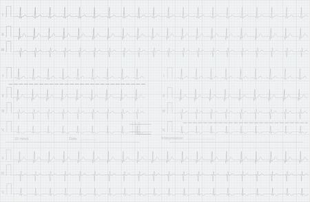 ECG lines background, medical science  illustration