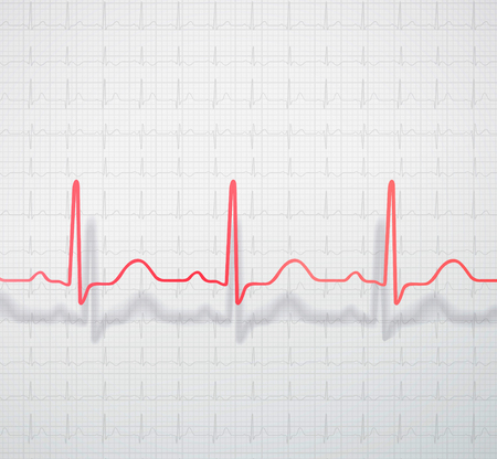 Spatially located cardiogram on the background of medical ecg paper