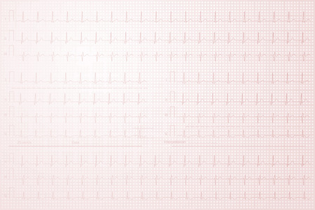 Cardiogram with lined paper as background