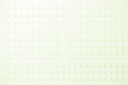 Cardiogram lines on the paper background illustration