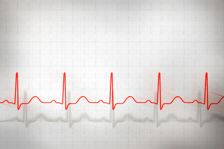Abstract cardiogram complexes on gray background Фото со стока