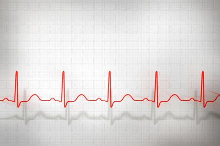 Abstract cardiogram complexes on gray background Stok Fotoğraf