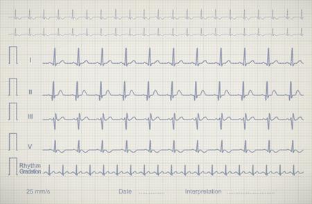 ECG (cardiogram) chart image of medical patient illustration Stok Fotoğraf
