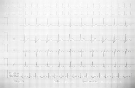Cardiogram with lined paper as a background for a medical publication, annual report, etc. echocardiogram  ultrasound cardiogram ultrasonic cardiogram