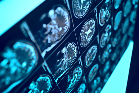 MRI film with human head as a conceptual medical background. Stok Fotoğraf