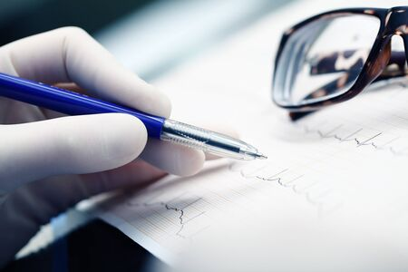 Doctor reads ECG and makes marks on the paper with pen in the gloved hand.