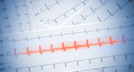 Medical background with ECg paper with red heartbeat line.