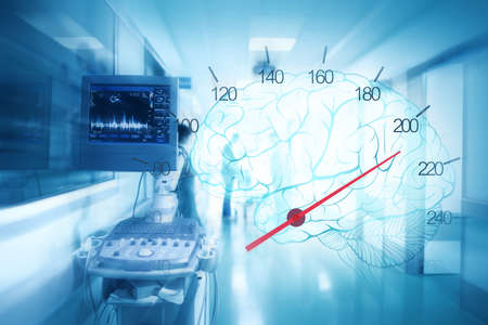 Medical staff and equipment in the ER hallway on the background of blood pressure monitor and brain images as a concept of rescue emergency care.