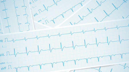 ECG tracing strips spread across the table as a medical background, vector.