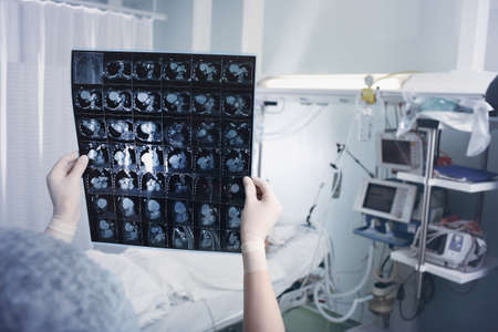 Female doctor looking at the MRI scan against the patient lying in the bed in the intensive care unit.