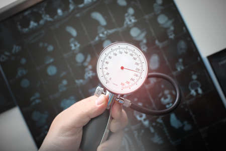 Pressure gauge in the hands of a doctor shows high blood pressure on the background of a CT scan. Reklamní fotografie