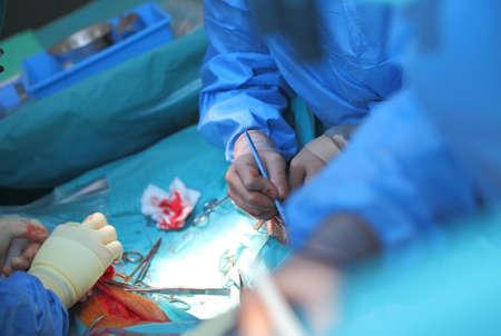 A team of surgeons performs an operation. Reklamní fotografie