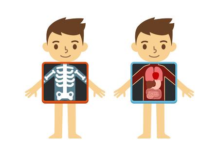 Dos ilustraciones de lindo niño de dibujos animados con la pantalla de rayos X que muestran sus órganos y esqueleto interno. Elemento de la infografía educativos para niños. Ilustración de vector