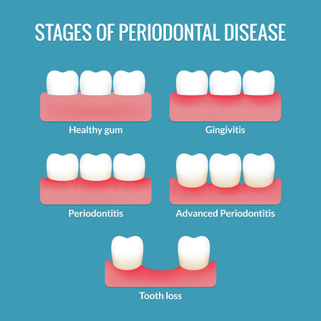 치은염, 치주염과 치아 손실 건강한 잇몸에서 치주 질환의 단계. 현대 의료 인포 그래픽 차트. 벡터 일러스트 레이 션.