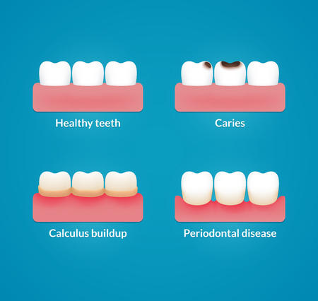 bacterial plaque: Common dental problems: caries, plaque and gum disease, with healthy teeth for comparison. Modern medical infographic chart. Vector illustration. Illustration