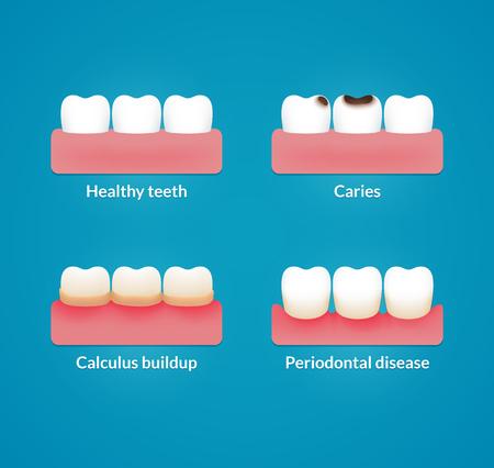 placa bacteriana: Los problemas más comunes: la caries dental, la placa y la enfermedad de las encías, con dientes sanos para la comparación. gráfico de infografía médica moderna. Ilustración del vector.