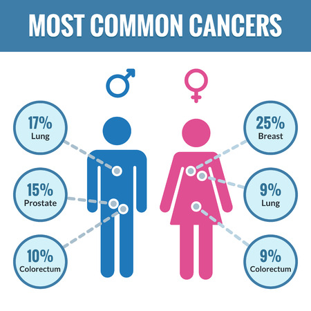 colon cancer: Common cancer infographics. Top three cancer in male and female in clean flat style. Medical vector illustration.