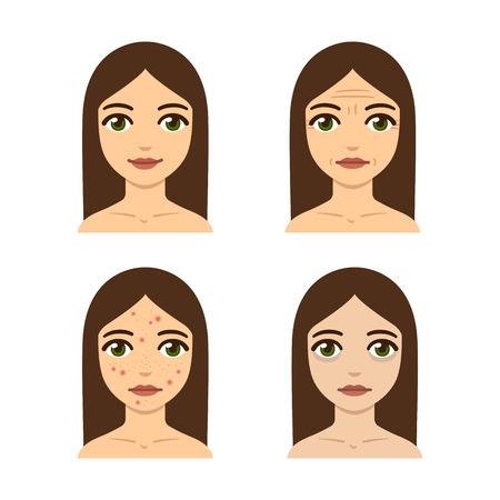 Giovane donna con problemi di pelle. Le rughe, acne, malattia della pelle. Salute e bellezza illustrazione.