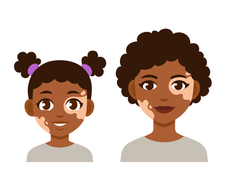 Adult woman and child with vitiligo. Cute cartoon black girl character, vector illustration.