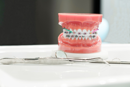 矯正歯科モデルと歯科医ツール-矯正歯科ブラケットまたはブレースの varities のデモ歯モデル