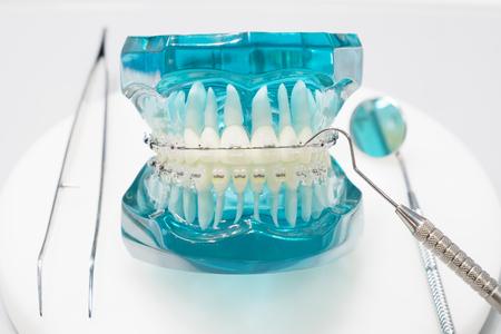 orthodontic model and dentist tool - demonstration teeth model of varities of orthodontic bracket or brace Standard-Bild - 90099500
