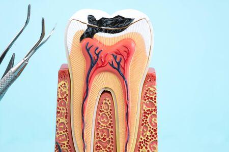 tandanatomie op blauwe achtergrond.