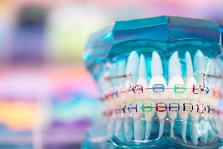 Modelo de ortodoncia y herramienta de dentista: modelo de demostración de dientes de variedades de brackets o brackets de ortodoncia Foto de archivo