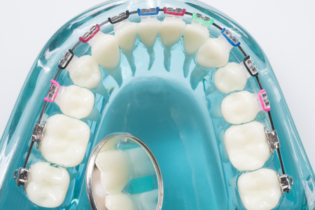 orthodontic model and dentist tool - demonstration teeth model of varities of orthodontic bracket or brace Banque d'images