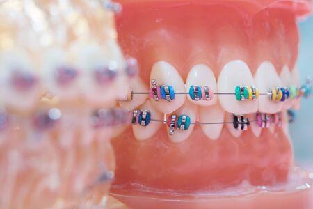 orthodontic model and dentist tool - demonstration teeth model of varities of orthodontic bracket or brace Stock Photo