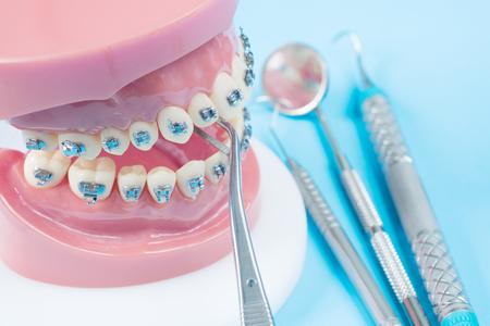 orthodontic model and dentist tool - demonstration teeth model of varities of orthodontic bracket or brace Archivio Fotografico