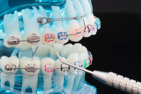 orthodontic model and dentist tool - demonstration teeth model of varities of orthodontic bracket or brace Foto de archivo