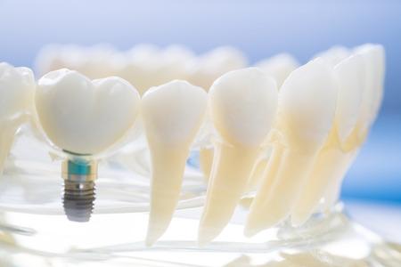 implantaat en orthodontisch model voor leerling om lesmodel te leren met tanden. Stockfoto