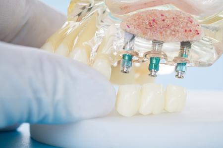 modelo de implante y ortodoncia para que el alumno aprenda a enseñar el modelo que muestra los dientes. Foto de archivo