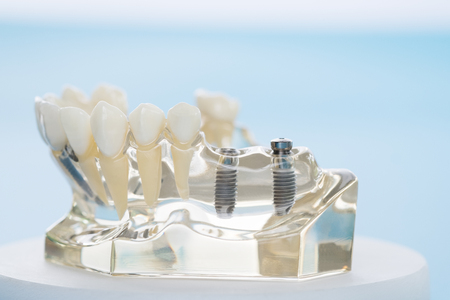 implant and orthodontic model for student to learning teaching model showing teeth. Stockfoto