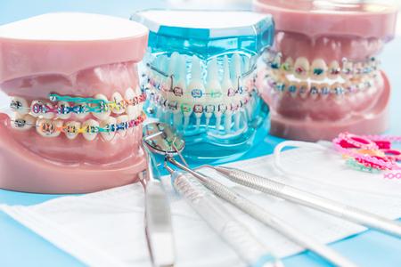 orthodontic model and dentist tool - demonstration teeth model of varities of orthodontic bracket or brace Фото со стока