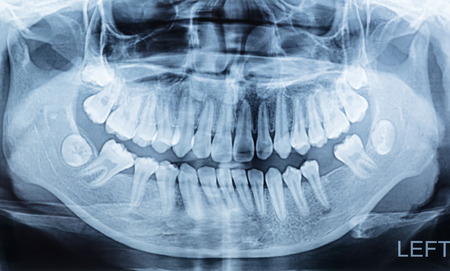 panoramic dental x-ray of a mouth lift and right side. Stock Photo