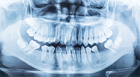 panoramic dental x-ray of a mouth left and right side. Stock Photo