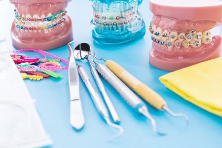 orthodontic model and dentist tool - demonstration teeth model of varities of orthodontic bracket or brace Imagens
