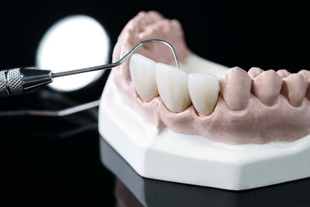 porsthodontic model and dentist tool - demonstration teeth model of varities of porsthodontic bracket or brace Imagens