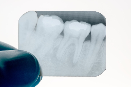 Close up panoramic dental x-ray of a mouth.