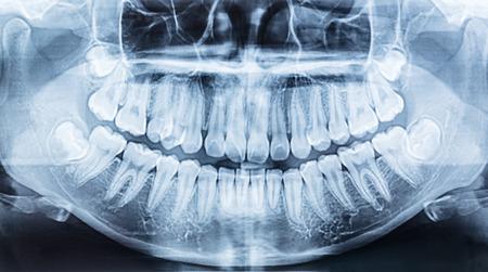 radiografia dentale panoramica di un lato sinistro e destro della bocca.