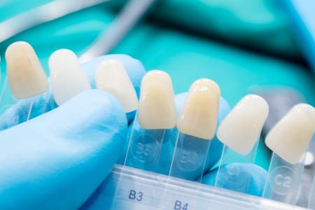 Close up scala colori per controllare il colore della corona del dente in clinica. Archivio Fotografico