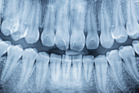 panoramic dental x-ray of a mouth left and right side. 版權商用圖片