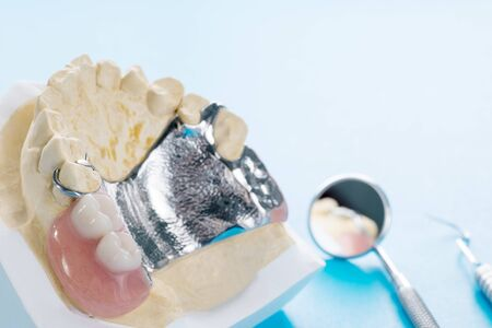 Close up, Removable partial denture (RPD.) on blue background. Stock Photo