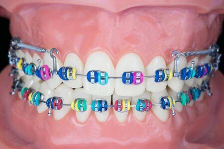 Close up orthodontic model, demonstration teeth model of varieties of orthodontic bracket or brace