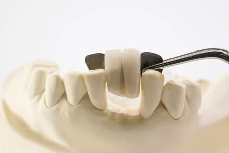 Closeup Dental maryland bridge, Crown and bridge equipment and model express fix restoration. Stock fotó