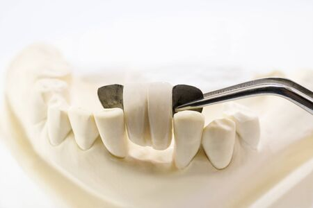 Closeup, Dental maryland bridge, Crown and bridge equipment and model express fix restoration. Stock fotó