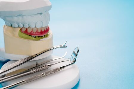 Closeup, Dental implants supported overdenture on blue background.