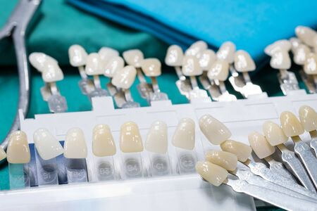 Close up shade guide for check color of tooth crown in clinic.
